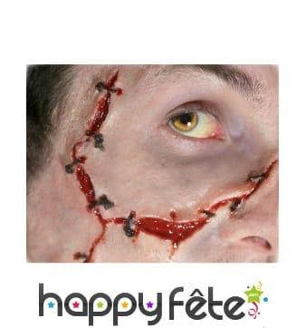 Blessure avec points de suture