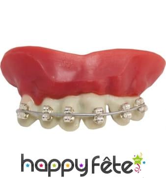 Fausses dents avec appareil dentaire